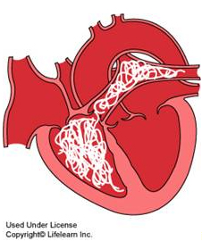 cartoon heart with heartworm